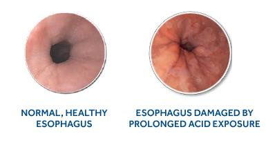 diagnosis symptoms and treatment of esophageal cancer The team retrospectively identified predictive genetic markers in 94% of  individuals who later developed early signs of esophageal cancer and.